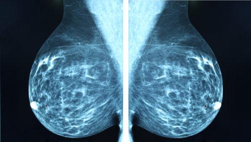 MammographyBreastCancer